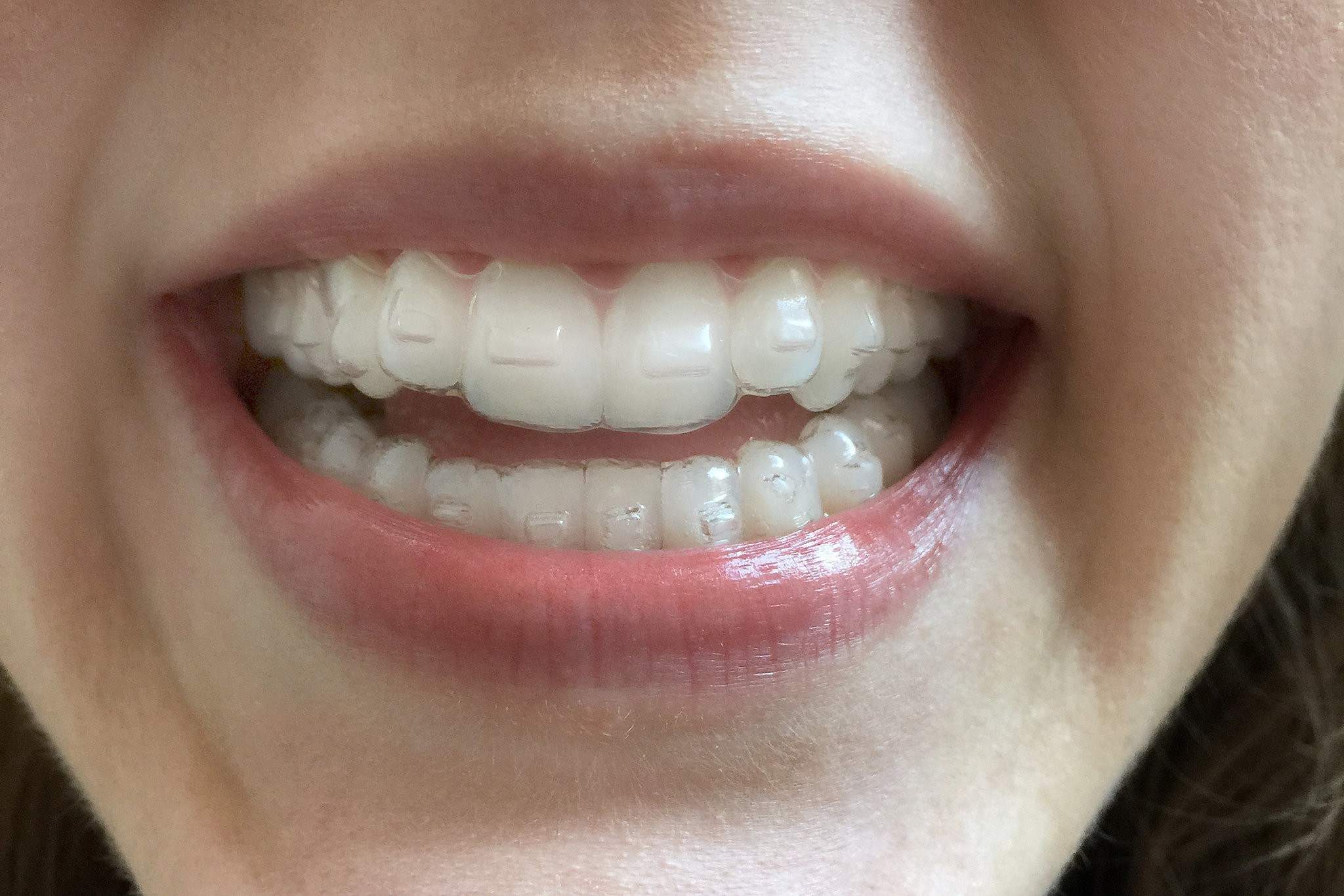 Drawbacks of Invisalign. Is it Really Worth the Cost?